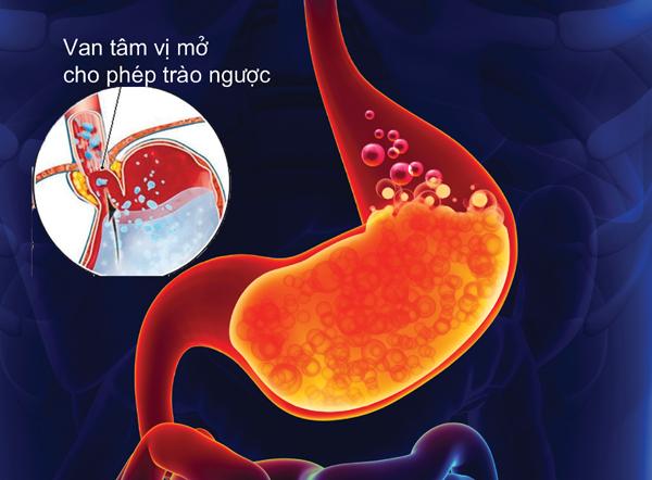 Kết quả hình ảnh cho trào ngược dạ dày